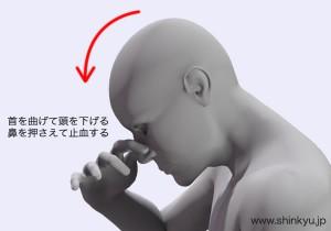 鼻血の対応