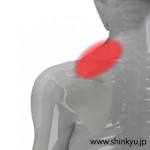 左肩の痛み